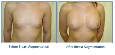 breast-enlargement1