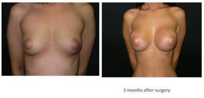 breast-enlargement2