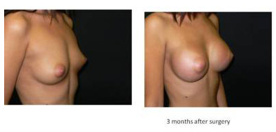 breast-enlargement3