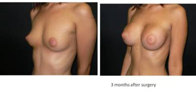 breast-enlargement4