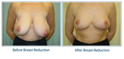 breast-reduction01