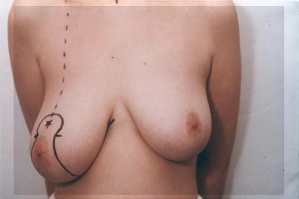 breast-reduction01a