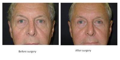 eyelid-surgery2
