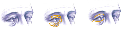 illustration-of-eyelid-surgery