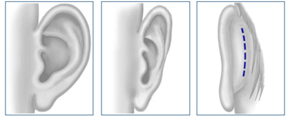 prominent-ears-img